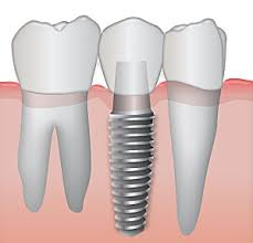 dental implant pic